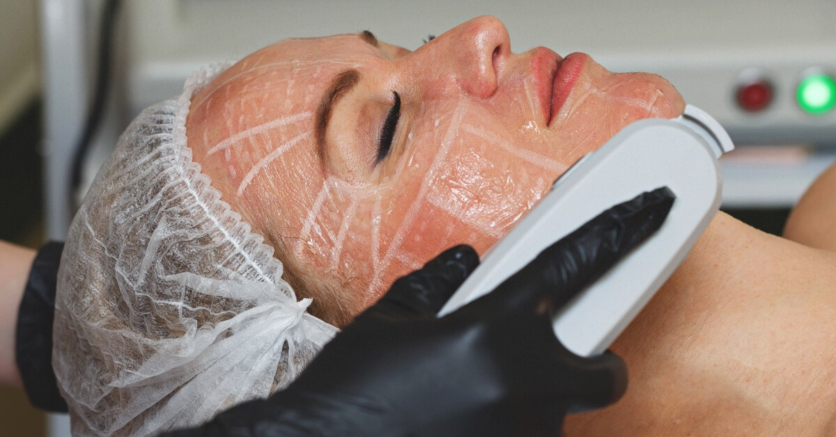 Skin Works Medical Spa provides the best ultherapy and skin tightening in Torrance and south bay los angeles